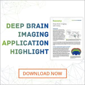 Deep Brain Imaging Application Highlight