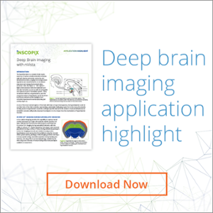 Deep Brain Imaging Application Highlight