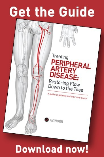 Treating Peripheral artery disease: Restoring flow down to the toes