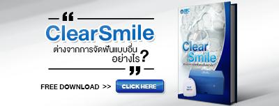 จัดฟันใส ClearSmile
