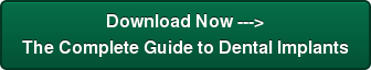 Download Now --->The Complete Guide to Dental Implants