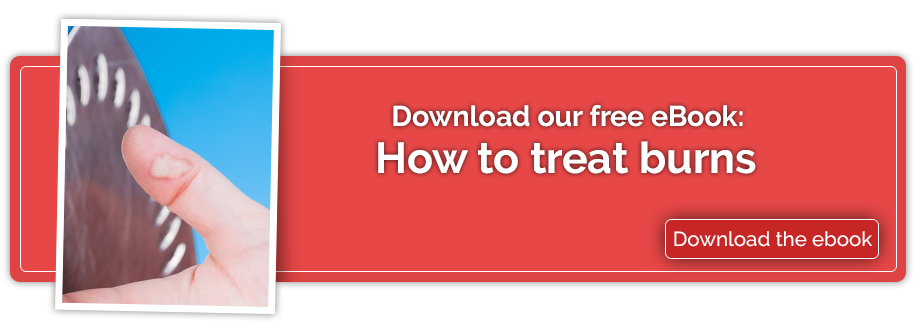 How to treat burns, an eBook