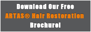 Download Our Free ARTAS® Hair Restoration  Brochure!