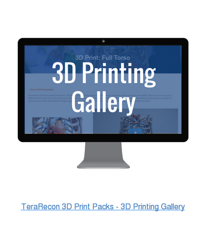 TeraRecon 3D Print Packs - 3D Printing Gallery