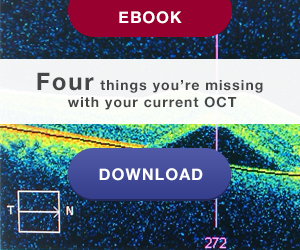 eBook: 4 things you're missingwith  your current OCT Click here to download!