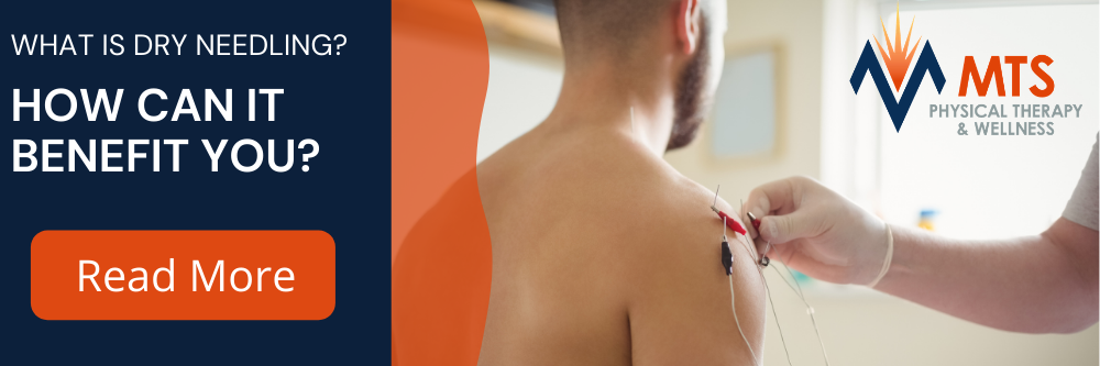 What is Dry Needling? | MTS Physical Therapy & Wellness