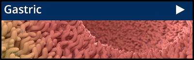 Gastric Cancer PDX Model Cohort