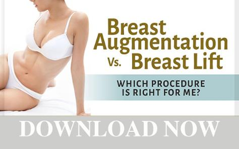 Download the free ebook on Breast Augmentation versus Breast Lift