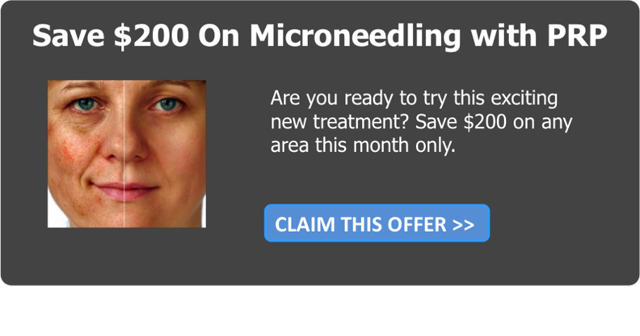 $200 Off Microneedling w/ PRP